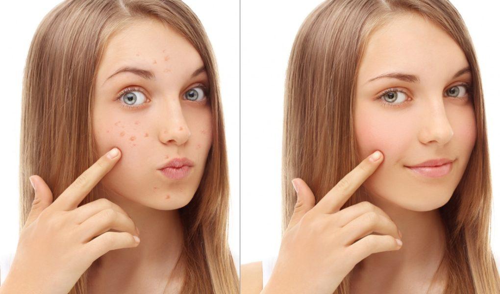 Особенности ухода за проблемной кожей подростка