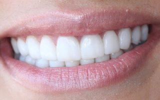 Виниры на зубы: преимущества