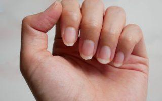 Ногти – расслоение и ломка