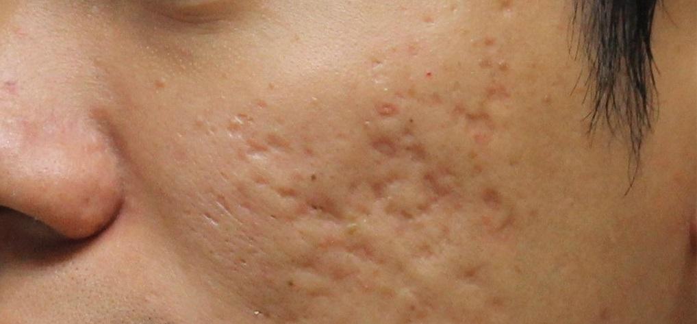 лечение шрамов после прыщей